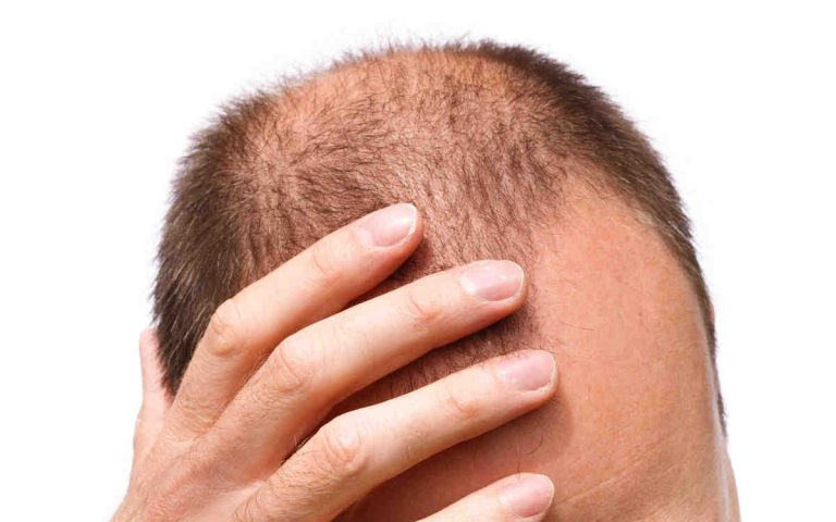 Guide to hair Transplant in Turkey